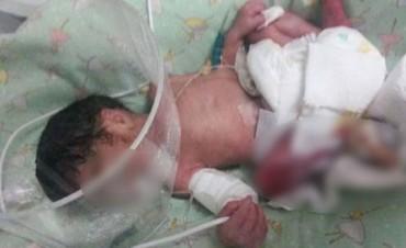 Amputaron a la beba recién nacida que fue quemada en un hospital de La Pampa