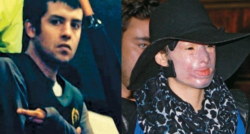5 años y 26 operaciones: La historia de la colombiana víctima de un fulminante ataque con ácido