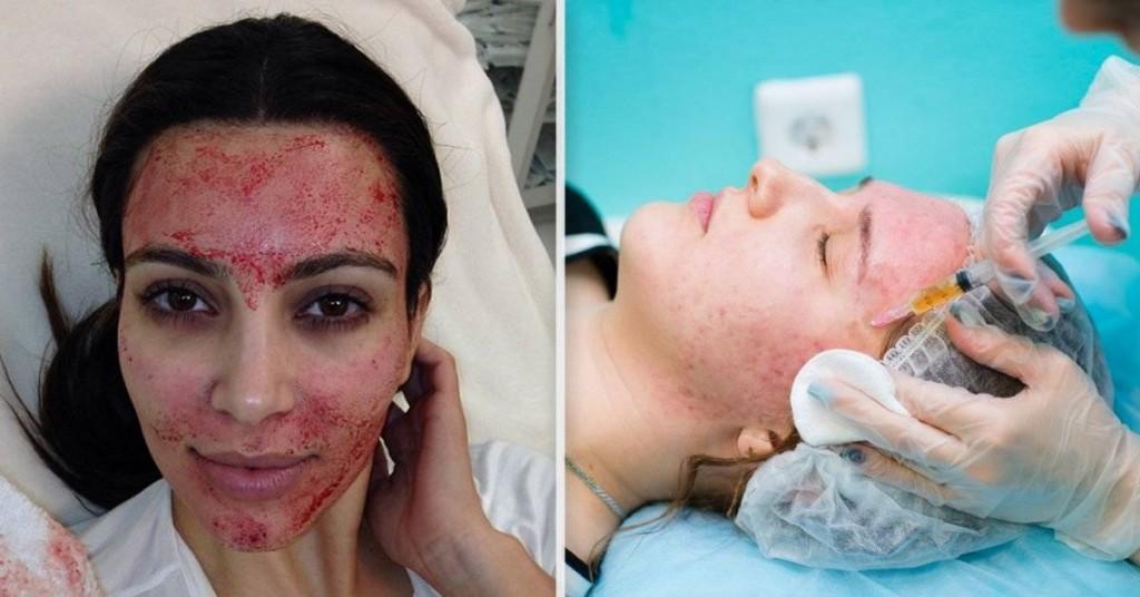 Una mujer se contagió VIH por imitar el tratamiento facial vampiro de Kim Kardashian