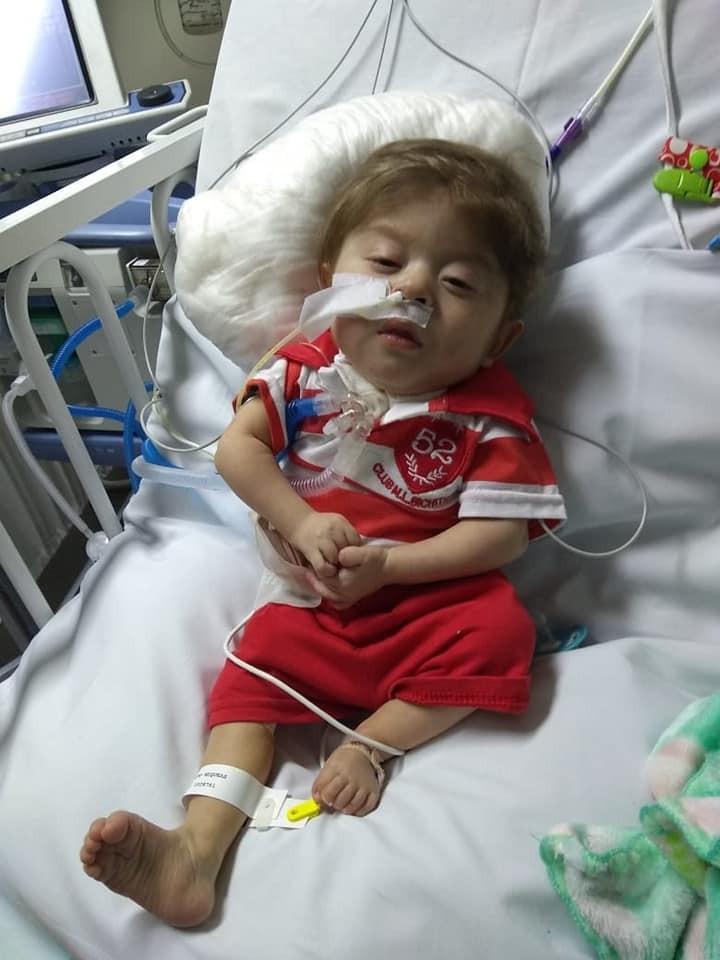 Falleció Jairo, el bebé catamarqueño que tenía una compleja enfermedad