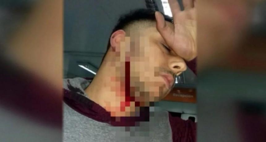 Violento ataque a un colectivero: le cortaron el cuello para robarle