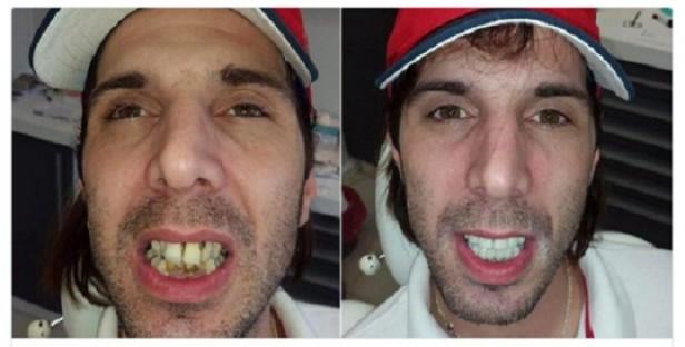 Tras las cargadas, el gigoló se arregló la dentadura
