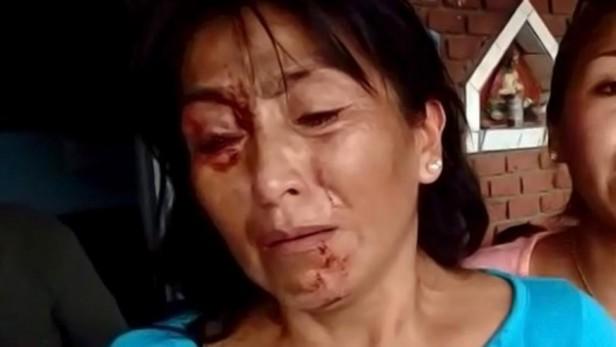 Jujuy: Denunció que la lincharon en La Esperanza por negarse a trabajar en una campaña K