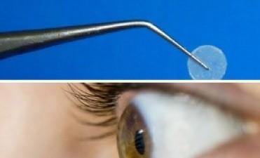 Un film ocular bioadhesivo para tratar el glaucoma