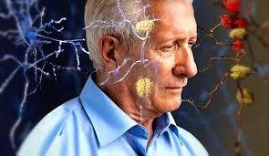 A 15 meses de su sanción, aún no fue reglamentada la Ley de Alzheimer