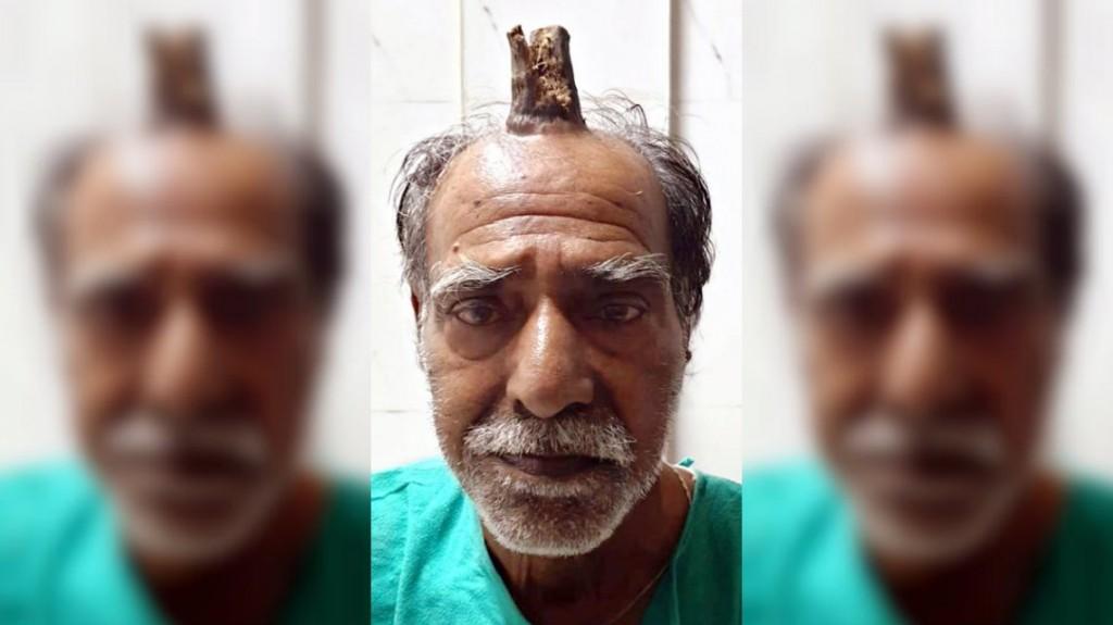 Le extirparon un cuerno de 10 centímetros que le creció en medio de la cabeza