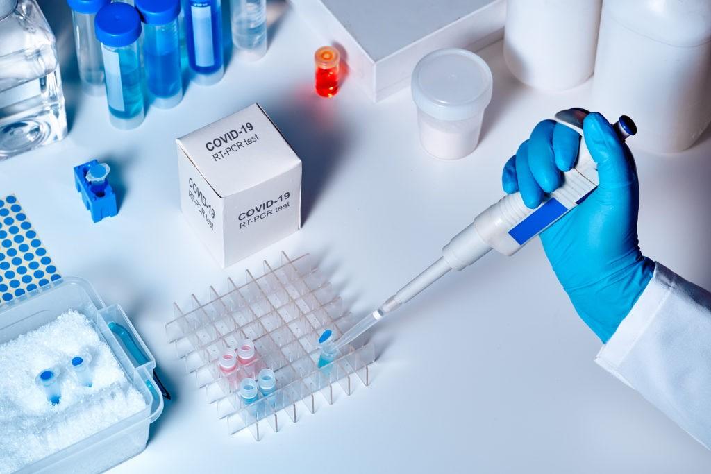 No pueden encontrar el nexo epidemiológico de cuatro casos de covid-19 positivo en la capital