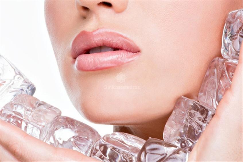Crioterapia facial el hielo como elemento de belleza