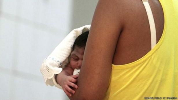 El virus zika y la  microcefalia en bebés  no tiene precedentes